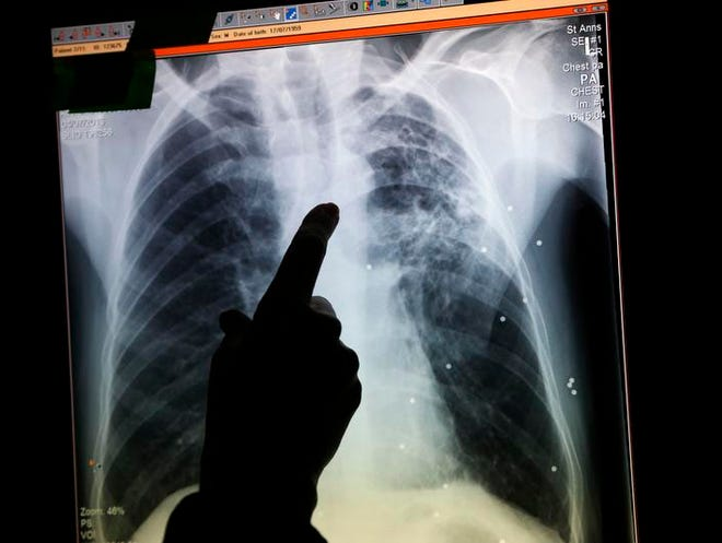 FILE PHOTO from Oct. 16 - An Indio High School student has been diagnosed with active tuberculosis, so the school will host a free screening clinic for classmates and staff who may have been exposed to the infectious disease. (AP Photo/Lefteris Pitarakis)