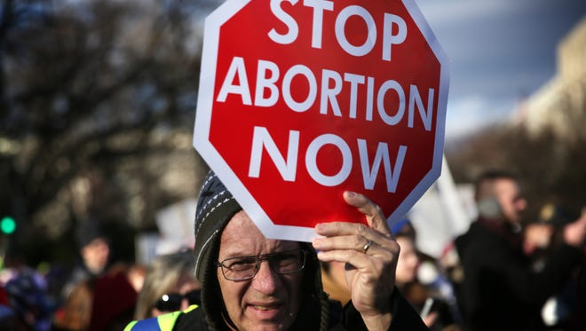 A pro-life activist holds a sign as he participates in the annual March for Life on Thursday, Jan. 22, 2015, in Washington, D.C. Pro-life activists gathered in the nation's capital to mark the 1973 Supreme Court Roe v. Wade decision that legalized abortion.