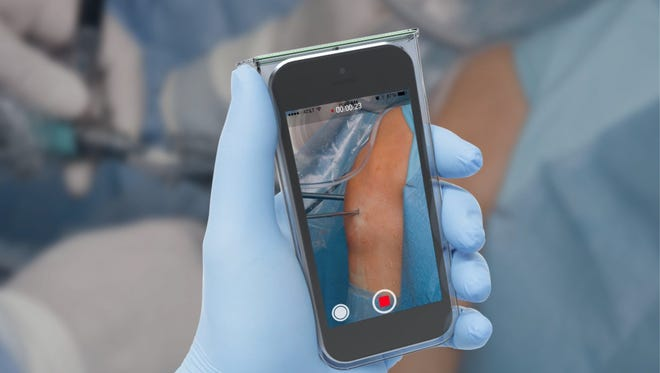 MSU medical student Rob Zondervan invented a sterile mobile phone case that surgeons could use to take photos or videos during operations without the risk of spreading infection to the patient. His business, SteriDev, recently recieved startup capital from Quantum, a Lansing incubator focused on healthcare technology businesses.