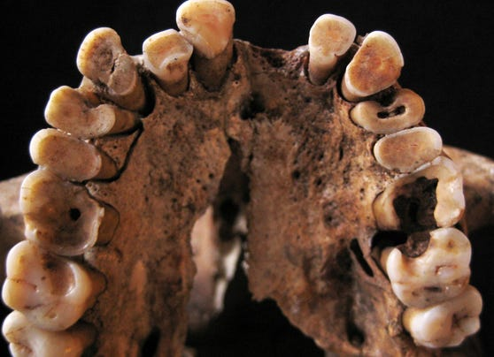 Tooth decay in early humans