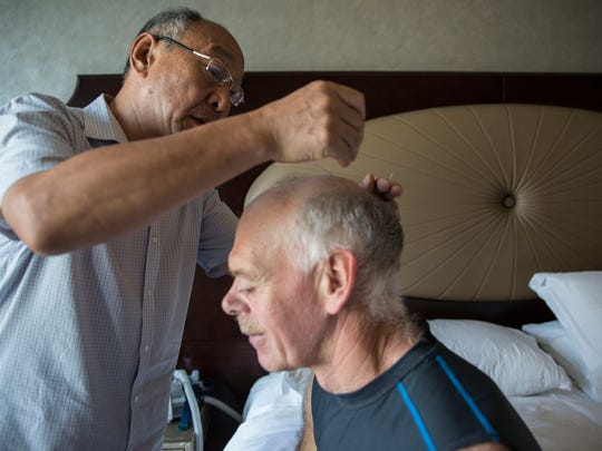 Jim Detweiler, of Williamsburg, Iowa, receives an acupuncture treatment from Dr. Zhang Shulin on Wednesday, Sept. 20, 2017, at the St. Regis hotel in Tianjin, China. Detweiler came to China to use traditional medicine as a treatment for his chronic inflammatory demyelinating polyneuropathy.