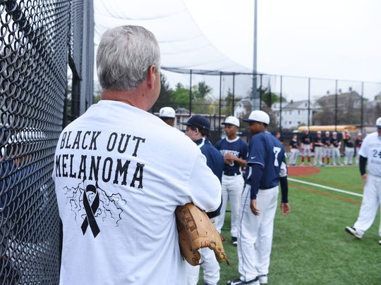 "Bill Zmudosky of Millbrook waits for Monday's ""Black Out Melanoma"" game to begin between Poughkeepsie and Red Hook. Zmudosky threw the first pitch of the game in honor of his late brother, Tom, who died two years ago from skin cancer."