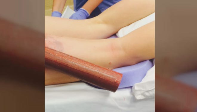 A woman was impaled in the buttocks by a pole after an accident where she admitted she was texting while driving.