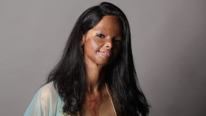 Laxmi Agarwal is an acid attack survivor and is an inspiration for many women.
