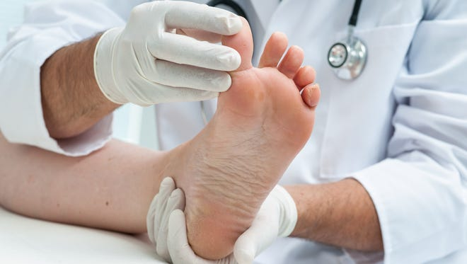 A bill in the Arizona Legislature would allow podiatrists to amputate toes.