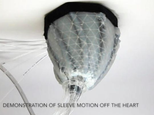 In this image from video, provided by Harvard University, a robotic sleeve designed to encase a diseased heart and gently squeeze it to help it better pump blood. Researchers at Harvard and Boston Children's Hospital developed the experimental device in hopes of improving treatment of heart failure, when the heart becomes too weak to pump.
