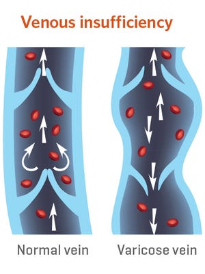 When valves don't work appropriately and vein walls weaken, blood can begin to pool—most frequently in the legs.