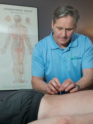 Robert Balko, owner of The Atlantic Center for Acupuncture and Oriental Medicine, performs acupuncture on a patient at his Belmar office.