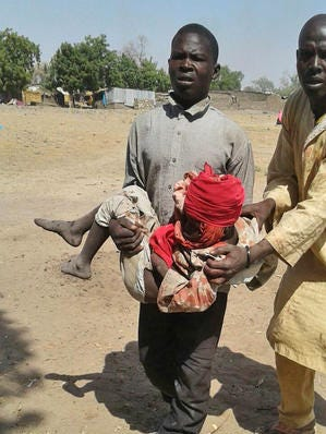 In this image supplied by MSF, a man carries an injured child following a military air strike at a camp for displaced people in Rann, Nigeria, Tuesday Jan. 17, 2017.  Relief volunteers are believed to be among the more than 100 dead after a Nigerian Air Force jet fighter mistakenly bombed the refugee camp, while on a mission against Boko Haram extremists. Medical condition of the child unknown.
