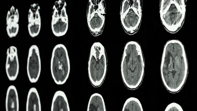 Scan of brain show ischemic and hemorrhagic stroke
