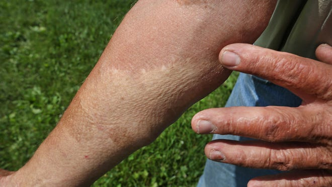IU School of Medicine researchers have discovered a way to grow hairy skin that could one day be used to help in skin grafts like the one shown here from a 2013 farming accident.