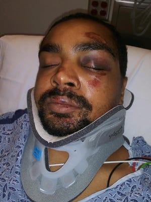 Christopher Divens in the hospital after he was hit by a police cruiser.