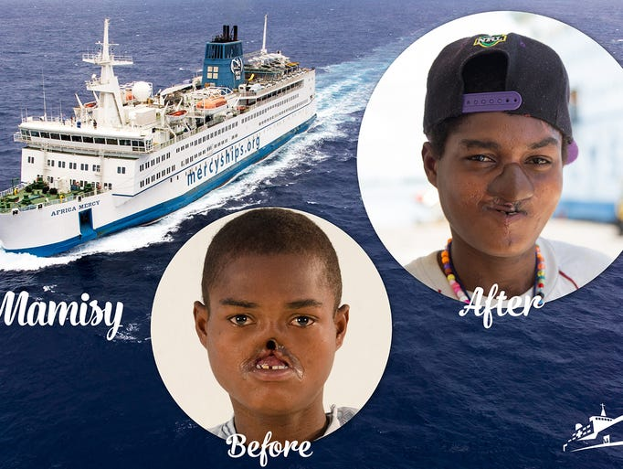 katie keegan mercy ships photographer