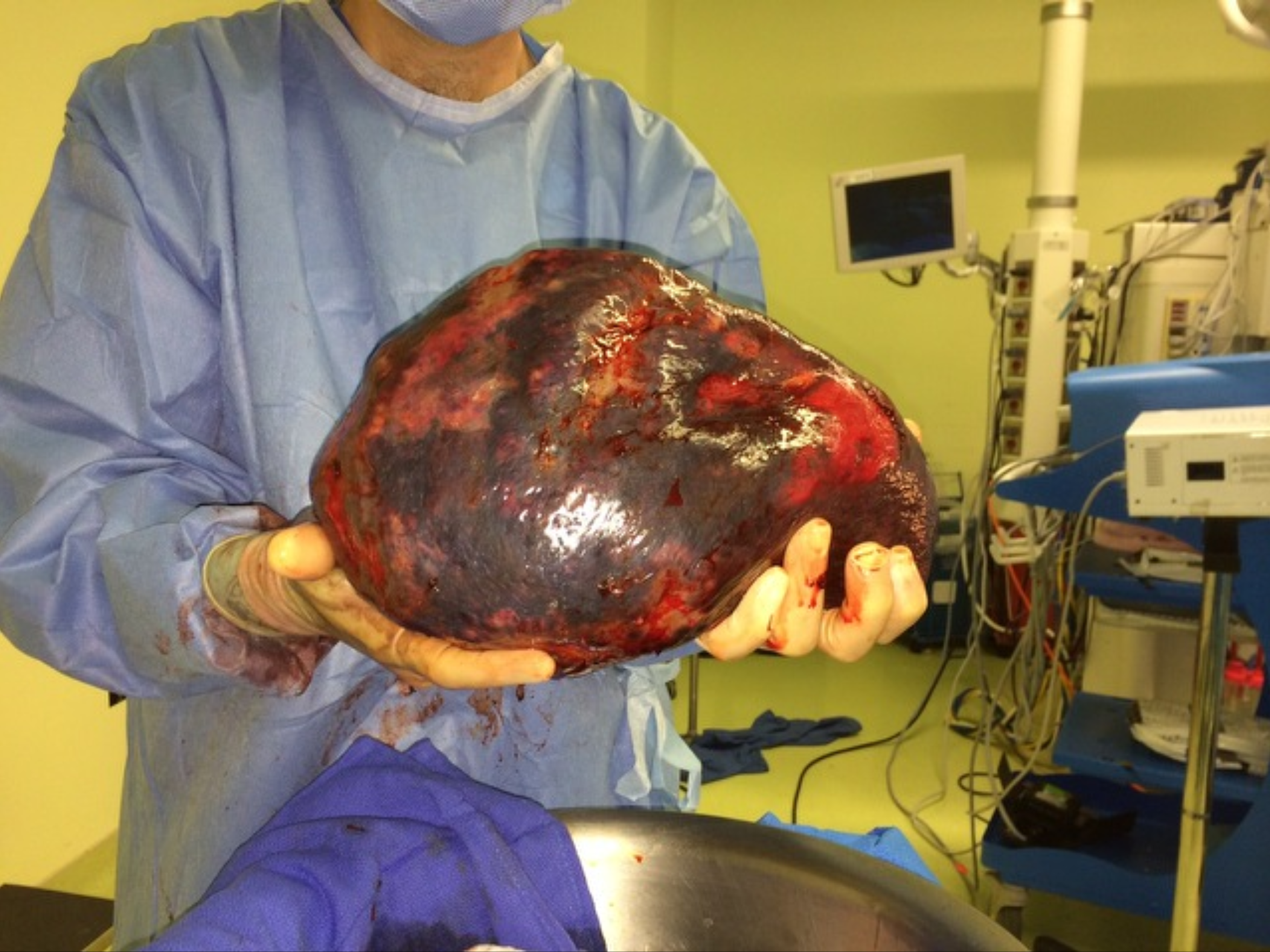 Former Pompton Lakes resident Richard Orefice's spleen shortly after it was removed by surgeons in August 2014. Orefice was diagnosed with hepatosplenic gamma-delta T-cell lymphoma, a rare and aggressive form of cancer. Orefice believes his cancer was caused by DuPont pollution.