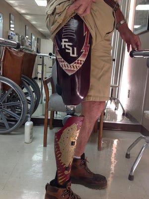 Dennis Janssen shows off his new Florida State University-themed prosthetic leg.