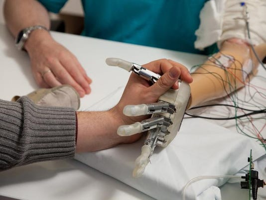 HealthBeat Bionic Hand (2)