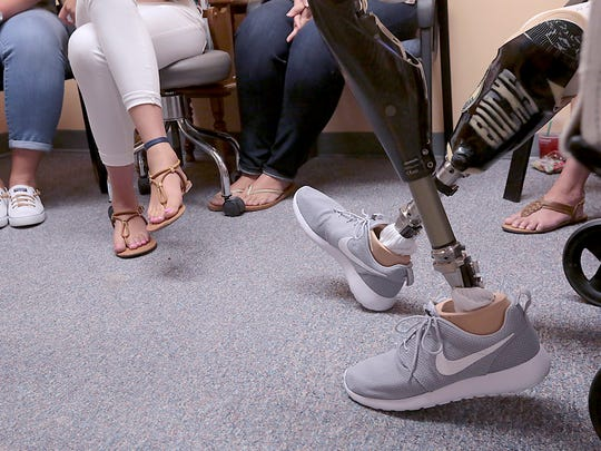 Collin VanderGalien's new prosthetic limbs await their first test during his appointment at Sisson Mobility Restoration Center, Inc. in Monona, Wis. VanderGalien lost both of his legs in an explosion at the Didion Milling Plant in Cambria, Wis. in May.