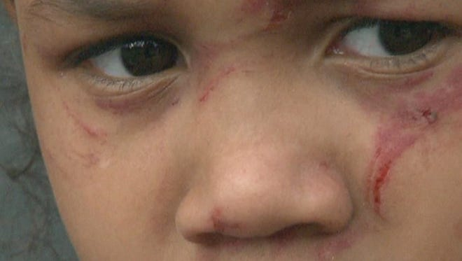 Six-year-old Lanira was attacked by a girl twice her age in a school bathroom, her parents said.
