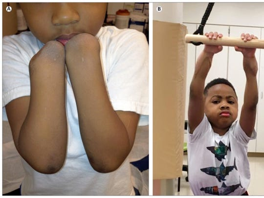 Since his double hand transplant, Zion Harvey has been