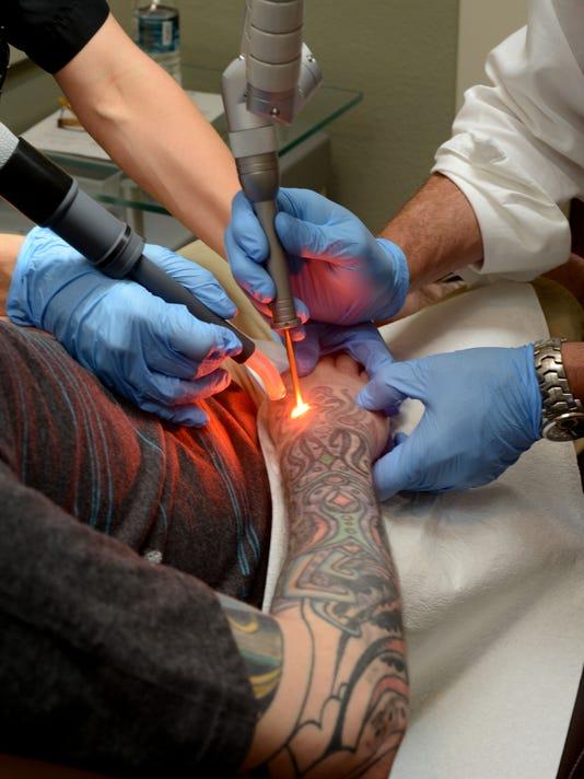 tattoo removal 4.jpg