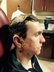 Jake Reynolds underwent reconstructive facial surgery