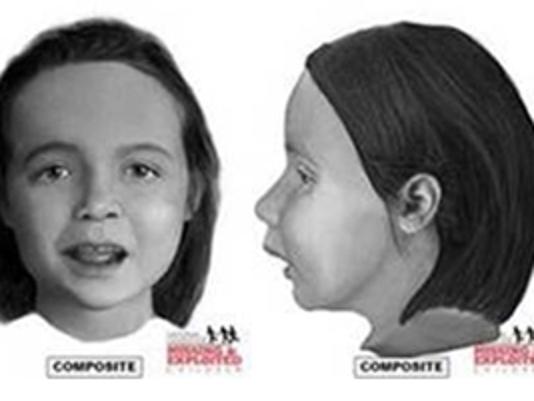 Facial reconstruction of girl