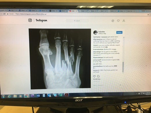 An X-ray on Kelly Slater's Instagram page shows his