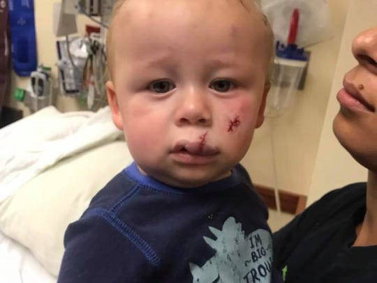 One-year-old Atticus was struck by a drone while playing in Bettendorf's Crow Creek Park with his mother on July 24. Police have fined a 19-year-old Davenport man $160 for flying the drone in a city park without permission.