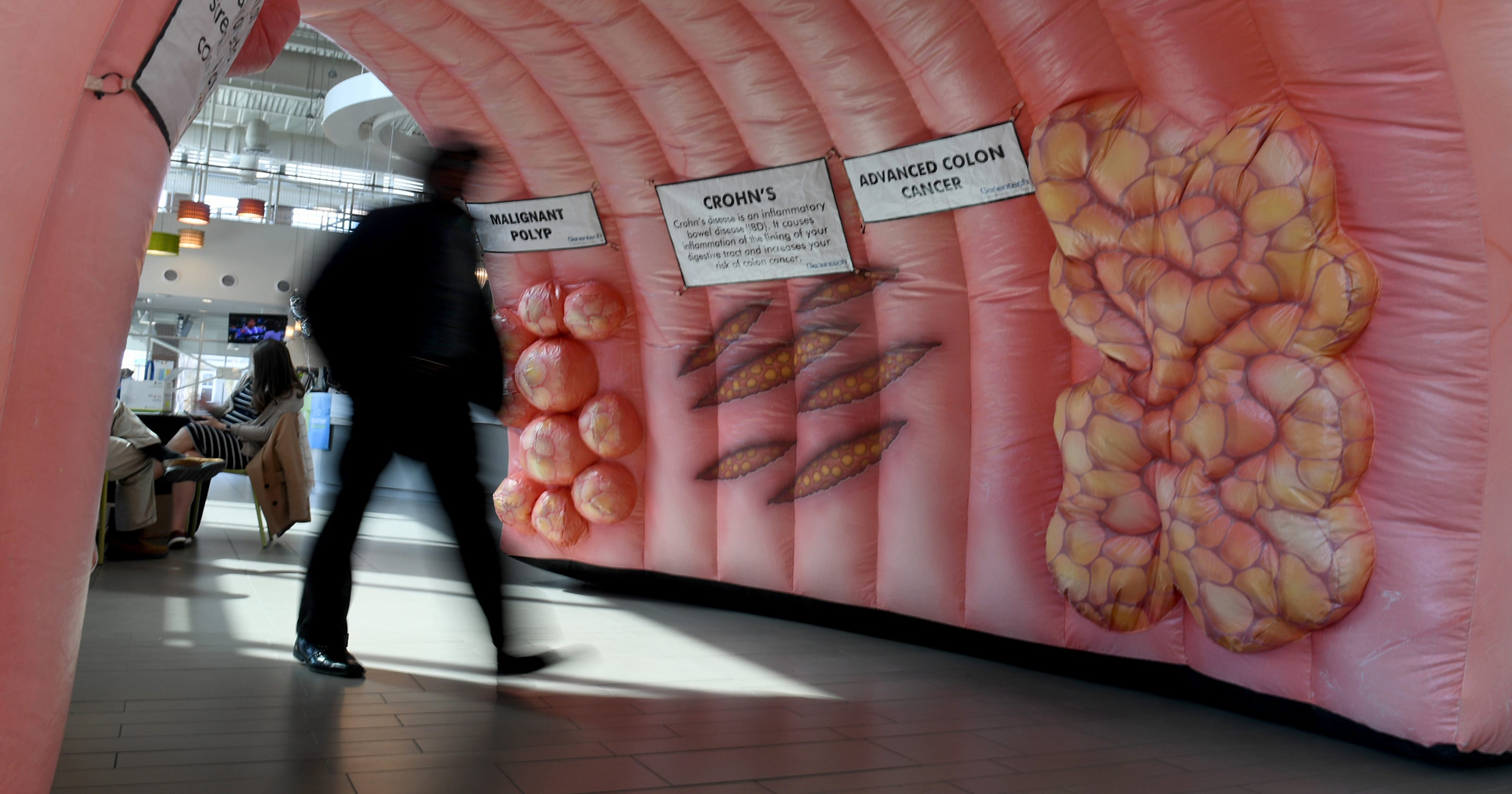 Giant Inflatable Colon Stolen And Its No Laughing Matter