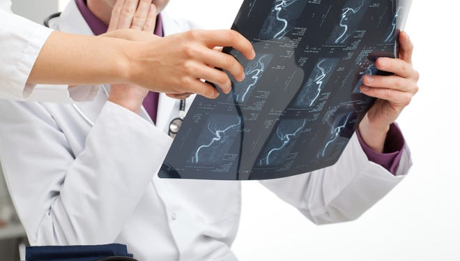 Experts report that the risk factors for nerve problems or conditions that affect the nerves include trauma, old age, a family history of neurodegenerative disorders, diabetes and alcoholism, among others.