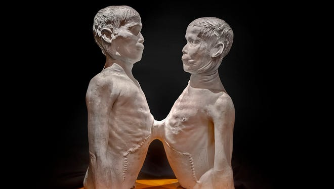 """Chang and Eng Bunker are the original """"Siamese twins."""""""