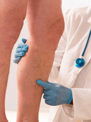 Varicose veins are the most commonly recognized sign that vein disease is present.