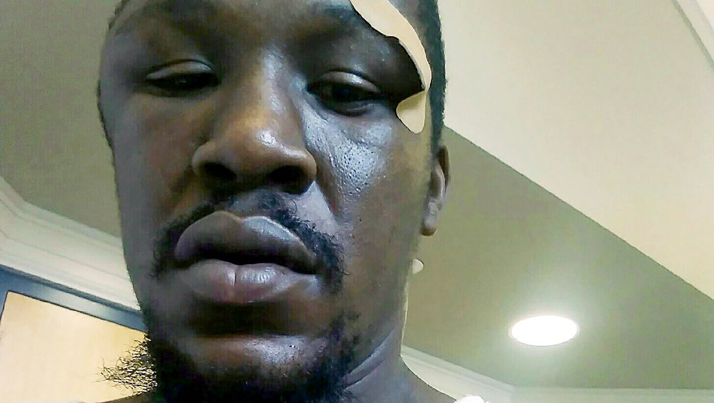 FBI opens investigation into police beating in North Carolina
