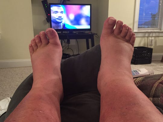 Swollen feet and legs -- Jeffrey Gentry's punishment for over indulging on the first night of vacation to the Southern Outer Banks in North Carolina.