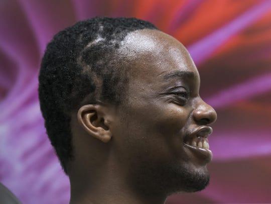 Chidi Tagbo of Nigeria had a tumor in his skull that