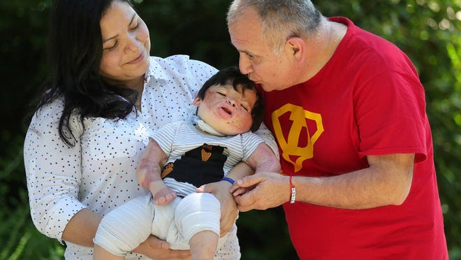 Family With Severely Burned Baby Ready To Start New Chapter In Akron