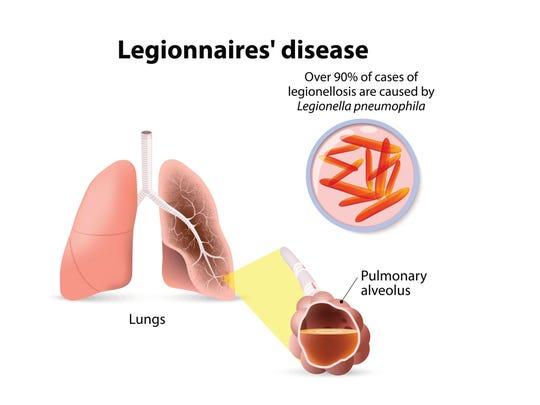 Legionnaires' disease or legionellosis