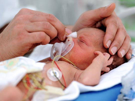 A nurse cares for a premature baby in the neonatal