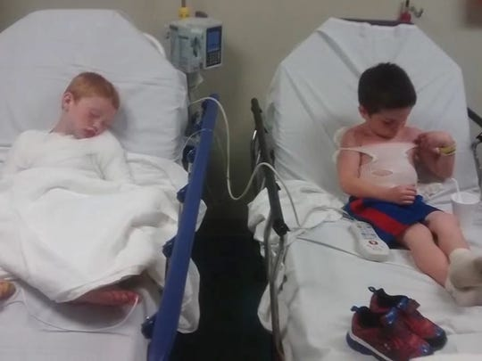 Seven-year-old Conner Harvey and 5-year-old Tray Wells suffered second- and third-degree burns.