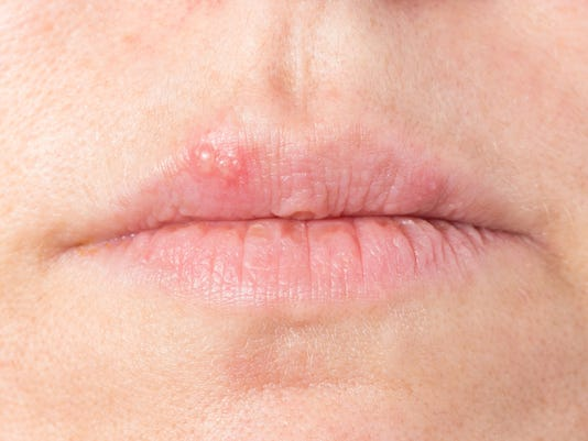 Home remedies: coping with cold sores