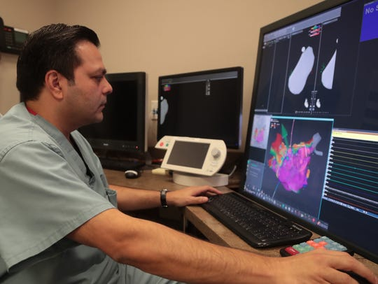 Dr. Hetal Bhakta is able to offer patients with atrial fibrillation a new medical procedure at Desert Regional Medical Center, July 18, 2018.