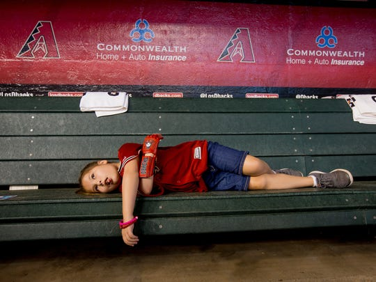 Hailey Dawson, 8, of Henderson, Nevada, lays down while her mother speaks to the press on July 21, 2018, before the Arizona Diamondback's matchup against the Colorado Rockies at Chase Field in Phoenix, Arizona. Hailey, born with Poland Syndrome, received a 3-D printed prosthetic hand created by engineering students from the University of Nevada Las Vegas.