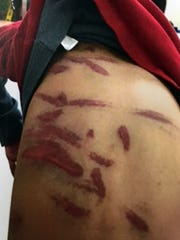 A doctor counted 36 bruises on Khin Par Thaing's 7-year-old son. This photo shows his back.
