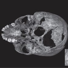 A scan shows injuries to the skull of King Richard III.  Richard's skeleton showed evidence of 11 injuries, including skull wounds,  from medieval weapons.