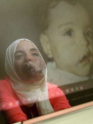 The image of University of Akron graduate student Lamise Elbetar is reflected on a computer screen in her dormitory room on the campus next to a photograph of her as a child as she looks through images documenting her severe facial deformity Friday, Aug. 24, 2018 in Akron, Ohio.  Elbetar has an extensive venous malformation on the right side of her face and she has been working with a group of professors and community members on a GoFundMe campaign to pay for treatments to lessen the deformity.
