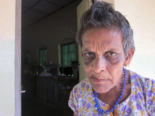 A patient at the Hendala Leprosy Hospital in Sri Lanka.