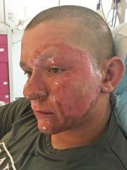 Alex Childress, 17, in a Fredericksburg, Va. hospital
