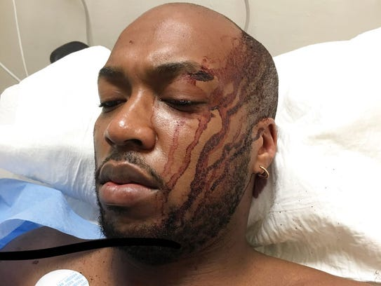 Jason Enwere's injuries are shown after the 26-year-old college student was attacked by a taxi driver and passenger in a cab on his way back to his hotel at an all-inclusive resort in Mexico.
