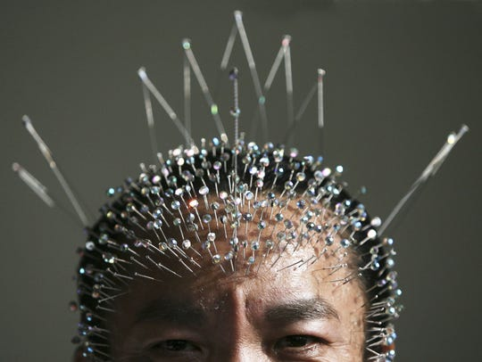 Wei Shengchu of China displays acupuncture needles