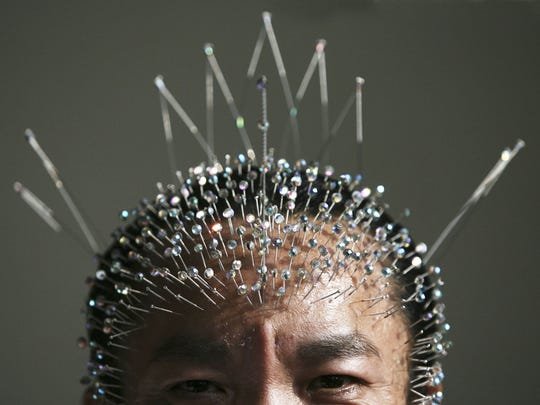 Wei Shengchu of China displays acupuncture needles in his forehead.